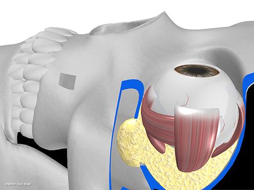 経上顎洞の眼窩減圧術10