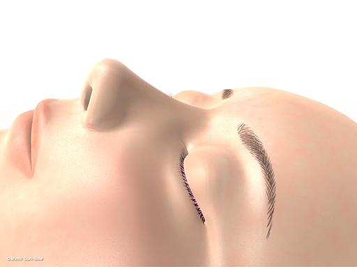 経上顎洞の眼窩減圧術1