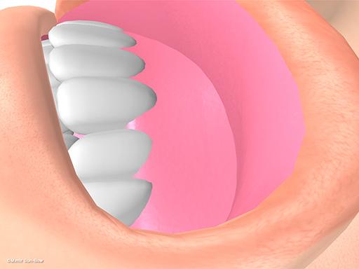 経上顎洞の眼窩減圧術2
