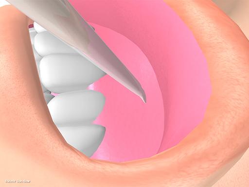 経上顎洞の眼窩減圧術3