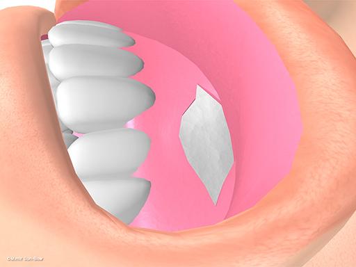 経上顎洞の眼窩減圧術4