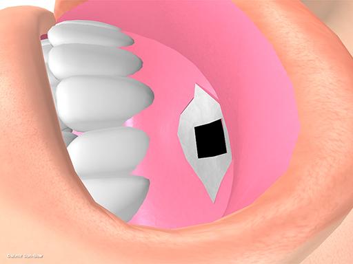 経上顎洞の眼窩減圧術6