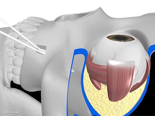 経上顎洞の眼窩減圧術8