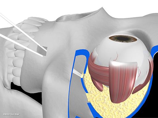 経上顎洞の眼窩減圧術9